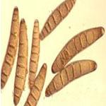 conidia helminthosporium oryzae)
