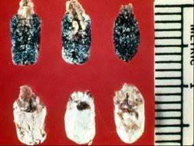 Chalk brood disease